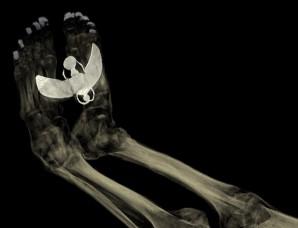 Auch Amulette wurden in den Mumien-Scans sichtbar. Neben Metallplättchen,die auf den Zehen von Tamuts Mumie gesteckt wurden, liegt auf ihren Füßen noch ein großes Amulett eines geflügelten Sakarabäus, der den Sonnengott Chepre symbolisierte.  Foto: The Trustees of the British Museum