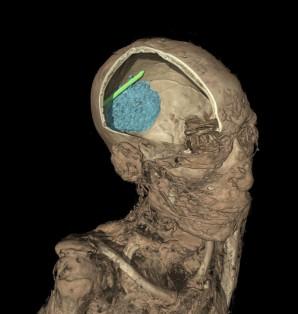 Kann ja mal passieren - einem Einbalsamierer blieb sein Haken beim Entfernen des Gehirns hängen. Ein Teil davon sieht man zusammen mit dem noch nicht entfernten Gehirn des Verstorbenen auf dem CT Scan.  Foto: The Trustees of the British Museum