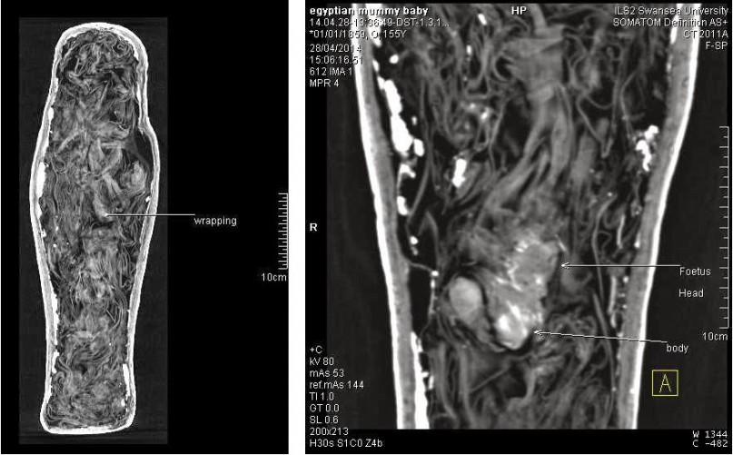 CT-Scan des Sarkophages