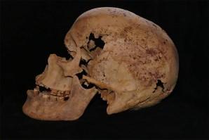 Der Schädel der Frau Bild: MSA