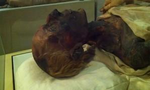 Die Mumie Ramses II.