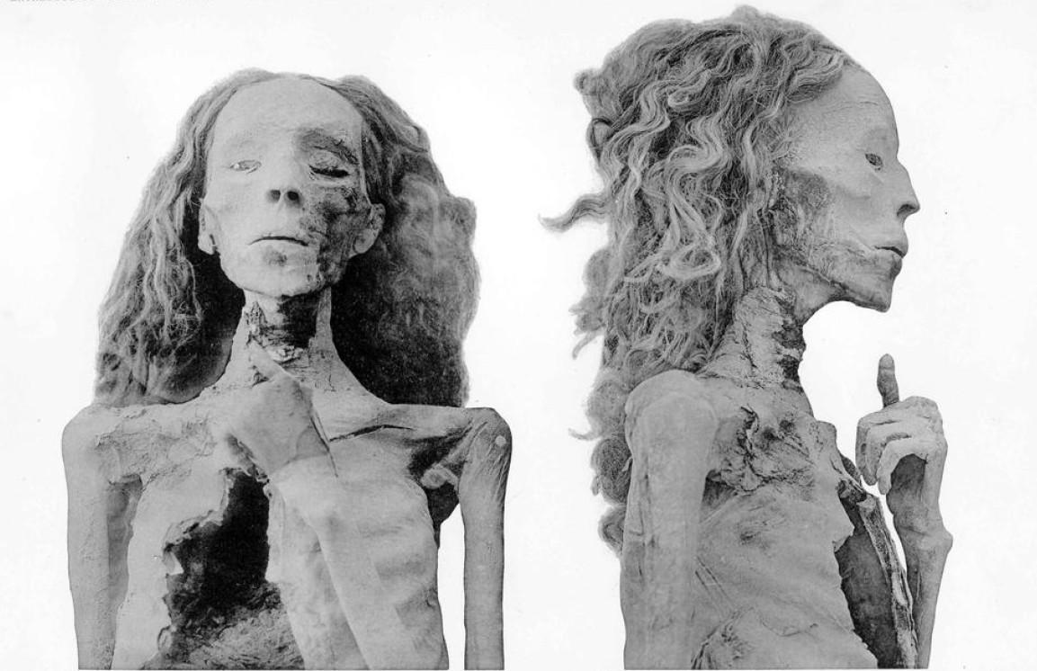 Die Mumie der Älteren Dame aus KV35. Foto aus G.E.Smith: The Royal Mummies, Kairo 1912.
