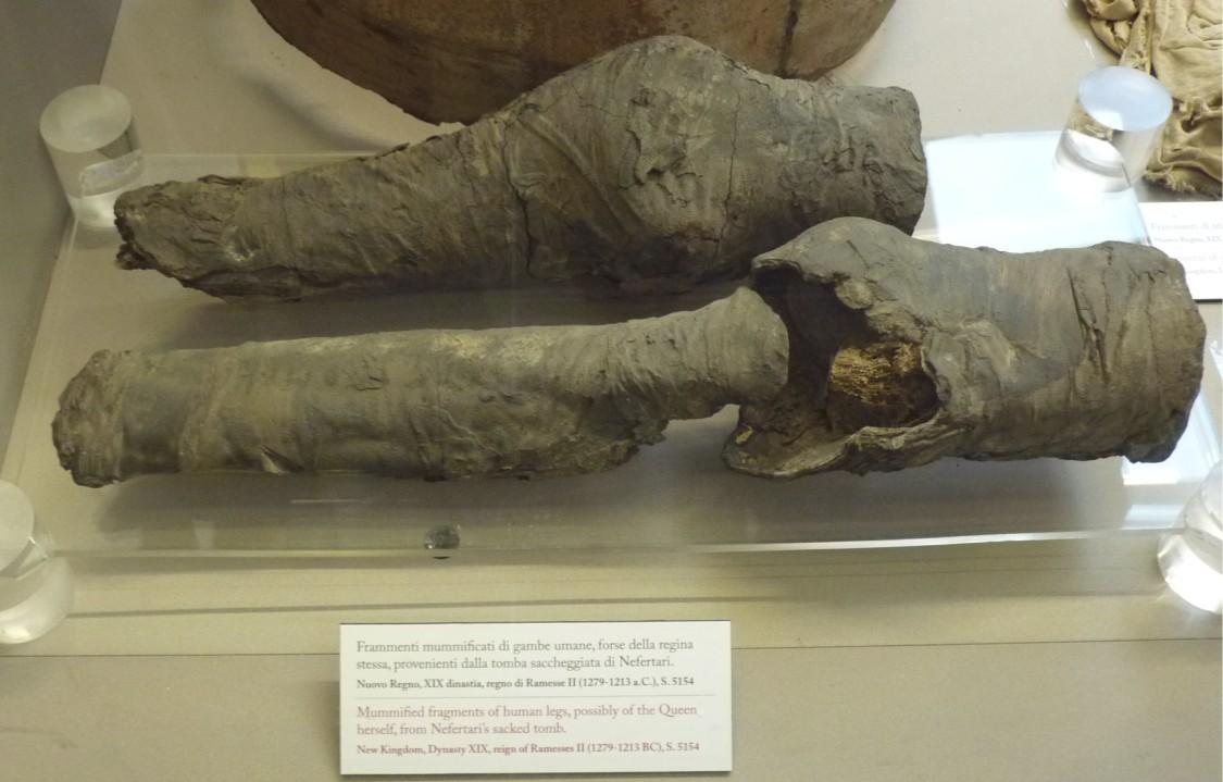 Die mumifizierten Beine aus QV 66, Nefertaris Grab. Bildquelle: Plos One, Ägyptisches Museum Turin.
