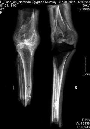 Röntgenbild der beiden Knie aus QV 66. Institut für Evolutionäre Medizin, Universität Zürich