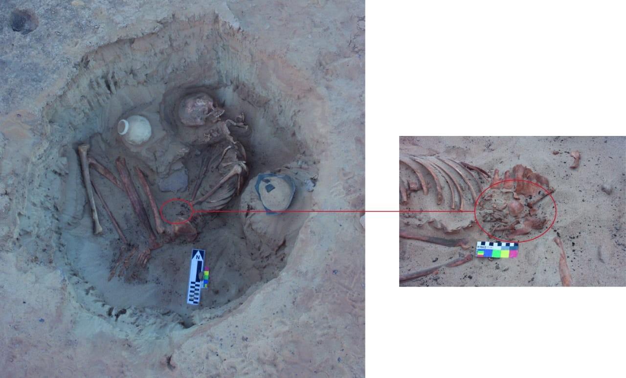 Grab Einer Schwangeren Nomadin In Kom Ombo
